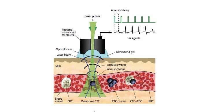 laser contra cancer