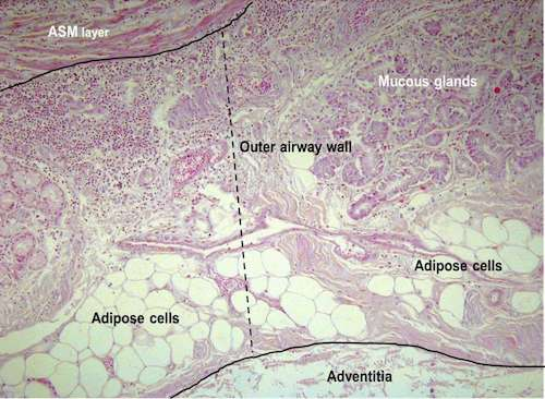 gordura nos pulmoes